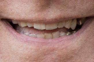 smiles-19
