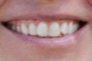 smiles-31